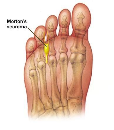 Neuroma de Morton (ilustração)